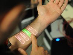Microchip under skin Credit: Chris Harrison, Scott Saponas, Desney Tan, Dan Morris - Microsoft Research